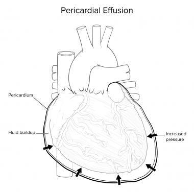 Анатомия сердечно сосудистой системы Перикардиальный выпот.  Анатомия сердечно сосудистой системы Анатомия сердечно сосудистой системы 12540tn
