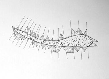 Scar revision. Geometric broken line closure (GBLC
