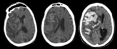 Noncontrast CT (left) obtained after this 75-year-
