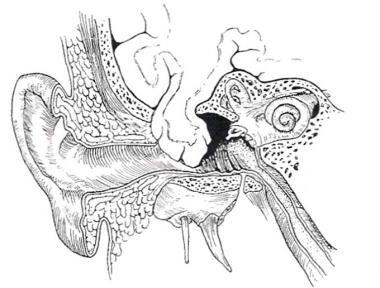 Artist's rendering of a tegmen tympani bone defect