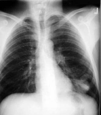 Chest radiograph from a patient with pulmonary bla