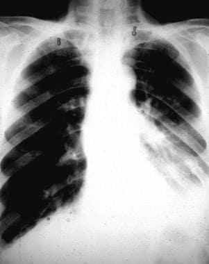 Chest radiograph shows rib fractures and a left-si