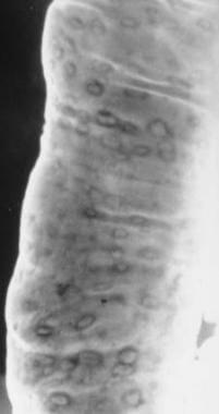 Crohn disease. Aphthous ulcers. Double-contrast ba