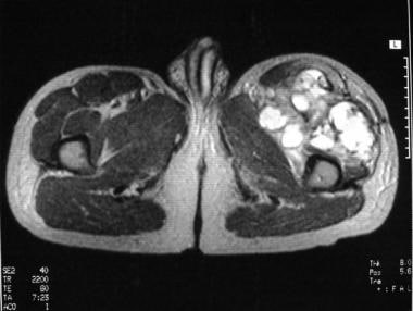 Axial T2-weighted magnetic resonance image of the