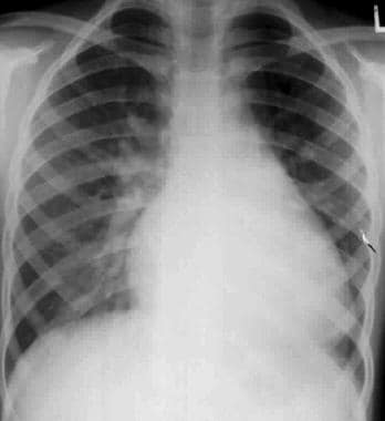 Chest radiograph in a 3-year-old with Down syndrom
