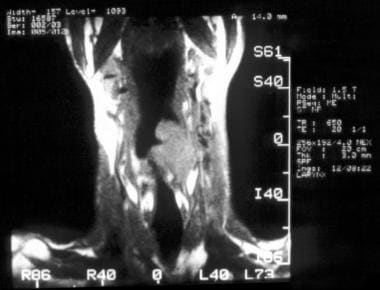 MR imaging, larynx. Sagittal T1-weighted MRI of th