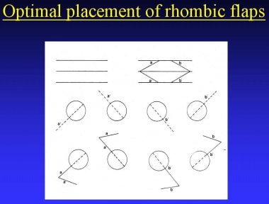 Optimal placement of rhombic flaps.