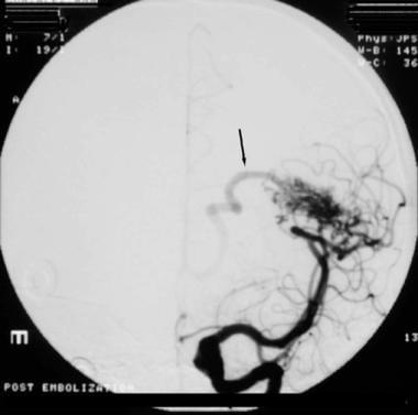 Angiogram (anteroposterior view) showing an arteri