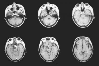 MRI of the brain in a patient with 8 CD4 cells/mL.