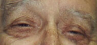 Patient with bilateral ptosis before surgery.