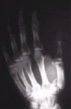 Rolando fracture. This is differentiated from a Be