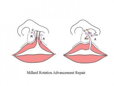 Millard repair. The medial lip element [R] is rota