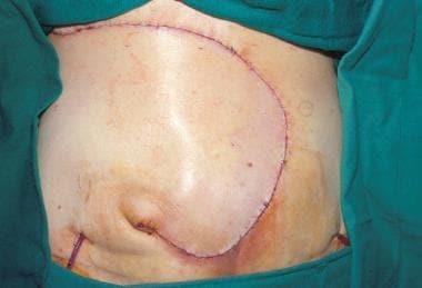 Reconstruction of grade IV sacral pressure ulcer i