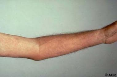 The arm of this patient demonstrates the puckered,