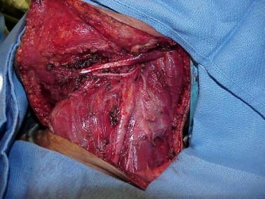 Final aspect of the surgical wound after removal o