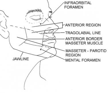 Subunits of the anterior region. Illustrated by Ch