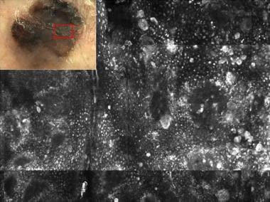 Atypical dermoscopical pattern in invasive melanom