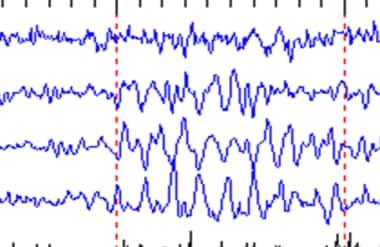 Example of mu waveforms.