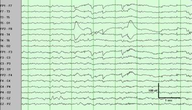 Rapid eye movement sleep with rapid (saccadic) eye