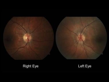 Normal-appearing right optic nerve and mild left o