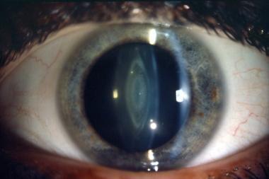Thin slit focal illumination can produce optical s