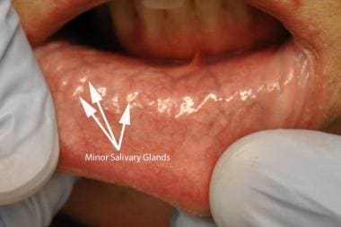 Minor salivary glands seen through the mucosa.