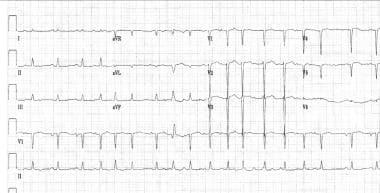 ECG showing multifocal atrial tachycardia (MAT).