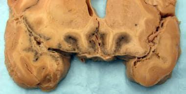 Bacterial meningitis (gross). Severe purulent meni