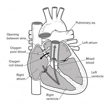 Atrial septal defect.