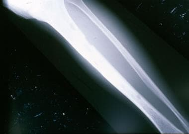 Plain film of the tibia demonstrates small lucenci