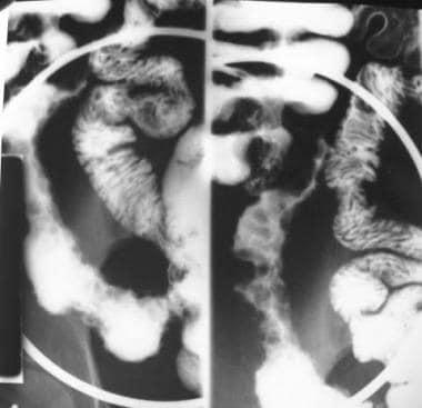Crohn disease. Cobblestoning. Spot view of the ter