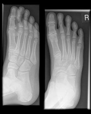 metatarsal fracture imaging: overview, radiography, computed, Human Body
