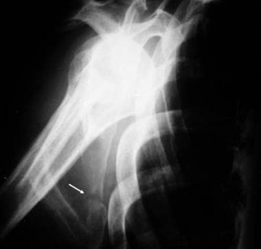 Radiography: Fracture of the scapula on a Y view.