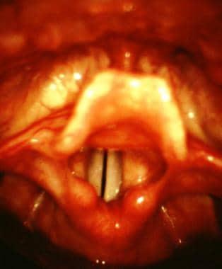Laryngoscopic view of the larynx. Note the followi