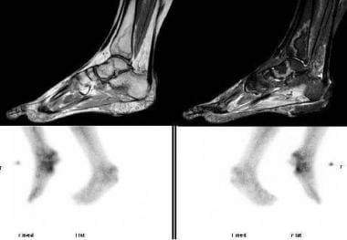 CAPS, Bone Infarction - MRI (High Resolution Proto