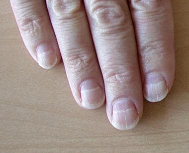Close-up view of 4 fingers. White horizontal bands