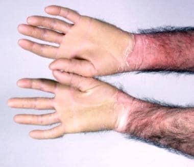 Diffuse glovelike palmar keratoderma. Courtesy of