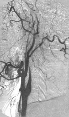 Cerebral angiogram of a left internal carotid diss
