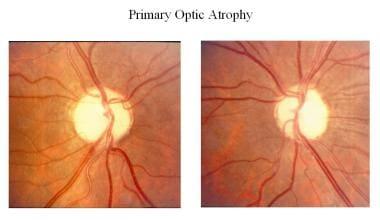 Primary optic atrophy.