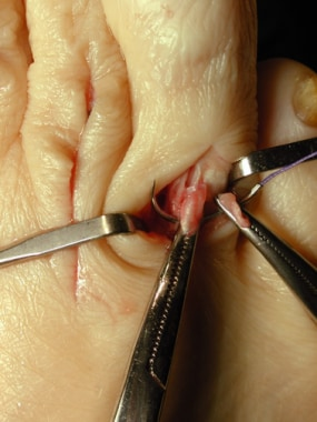 Claw toe. Repair each end of the raphe to the othe
