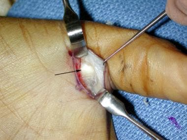 Trigger thumb. A1 pulley exposed within surgical f