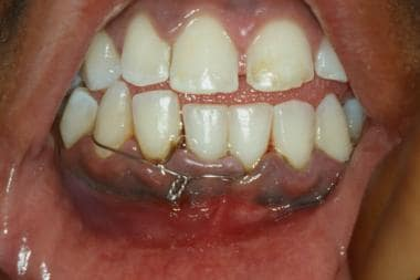 Mandibular fracture. Bridle wire used to decrease
