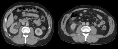 Axial CT images with intravenous contrast, reveali