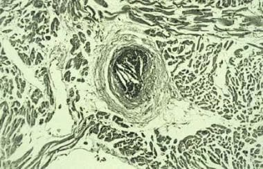 Cholesterol crystal embolization from upstream cor