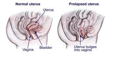 Normal uterus versus a prolapsed uterus.