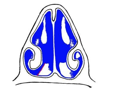 Incision through nasal floor.