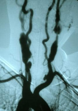 Symptomatic Takayasu arteritis involving both comm