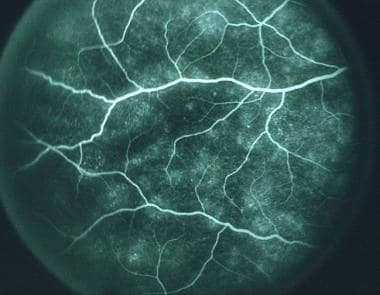 Midphase of fluorescein angiogram of the same pati