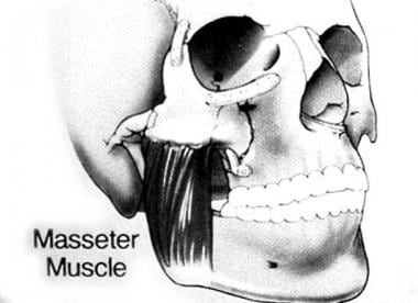 Anatomic depiction of the masseter muscle as it re