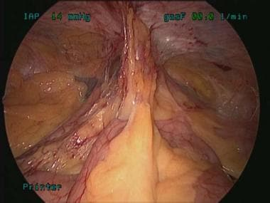 Adhesions to the mid pelvis.